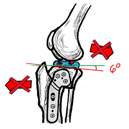 Image of a canine knee joint after TPLO surgery - Image copyright of Rebecca Jones